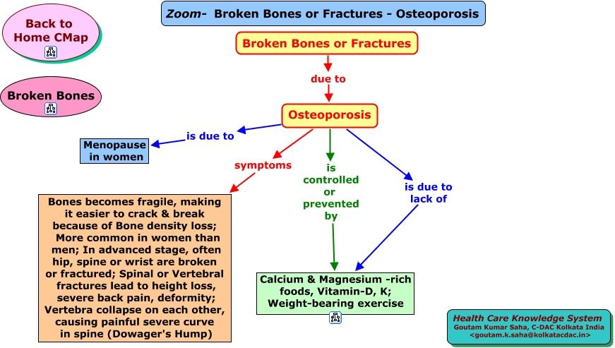 Break Or crack In A Bone